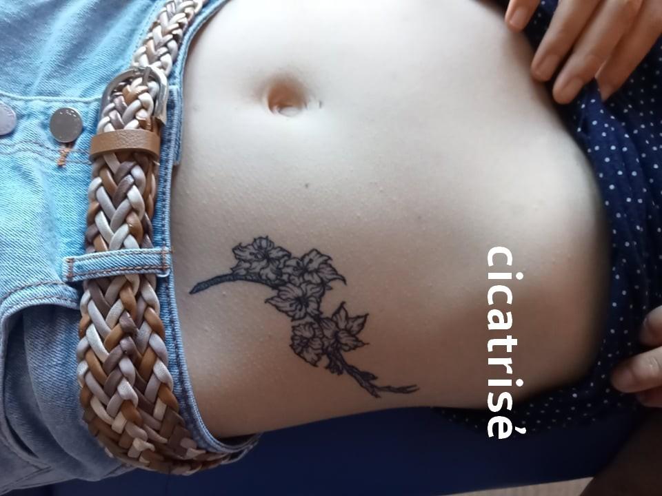 Cicatrises